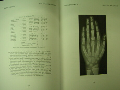 greulich pyle 1959 atlas: